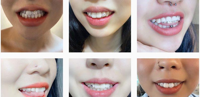 Zahn-Juwelen: der letzte Schrei in Korea