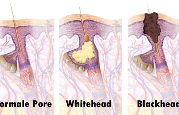 Was ist der Unterschied zwischen Blackheads & Whiteheads?